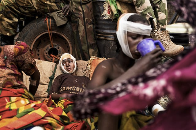 14 enfants blessés après une attaque près de Boali © Camille Lepage