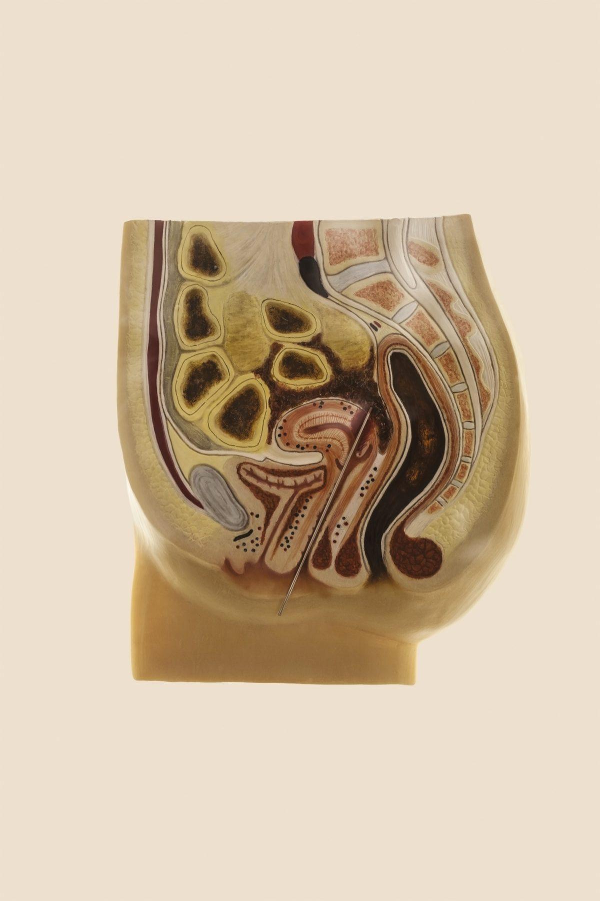 Coupe transversale d'un corps de femme, montrant les dommages d'un avortement effectué par des objets non destinés à cet usage © Laia Abril / Museum of Contraception and Abortion, Vienne, Autriche, 2015.