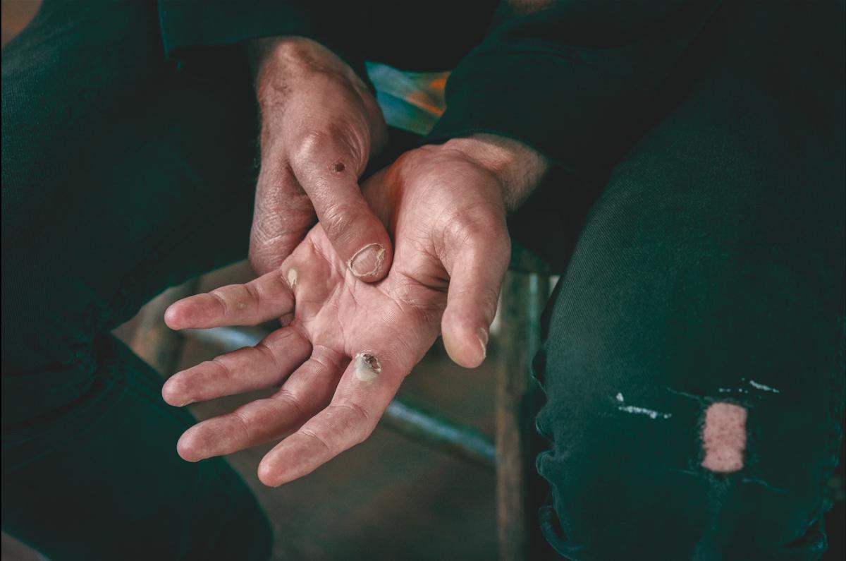 Les mains de Zach Hill, batteur des groupes Death Grips et Hella / © Deirdre O'Callaghan