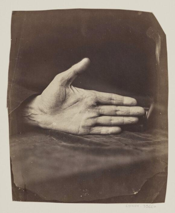 Félix Nadar, Main du banquier « cliché obtenu à la lumière diurne. Epreuve tirée à la lumière électrique », 1861 BnF, département des Estampes et de la photographie
